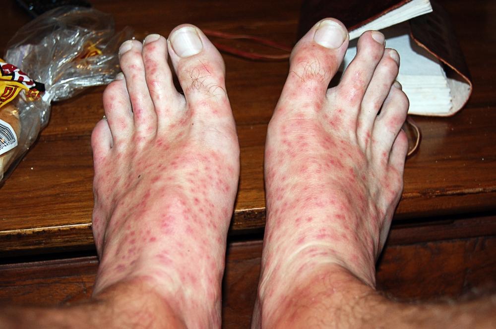 Bitten Feet